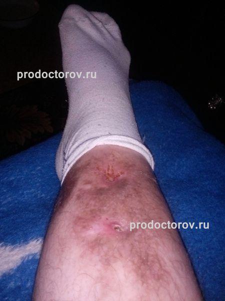 Отзывы 338 пациентов о центре Илизарова в Кургане - ПроДокторов