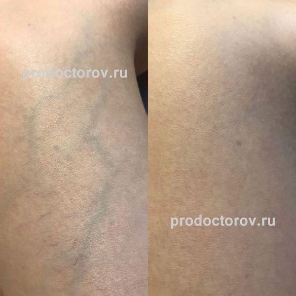 Scăpând de varice în Dnepropetrovsk
