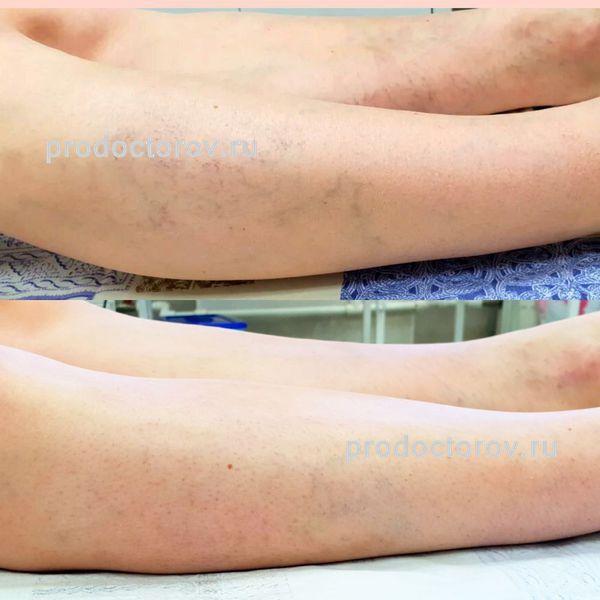 Tratarea varicelor fără pernă chirurgicală